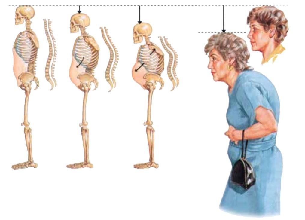 kako napreduje osteoporoza in znacilnosti osteoporoze
