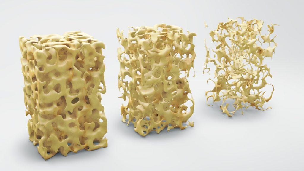 osteoporozne kosti